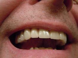 placuta dentara